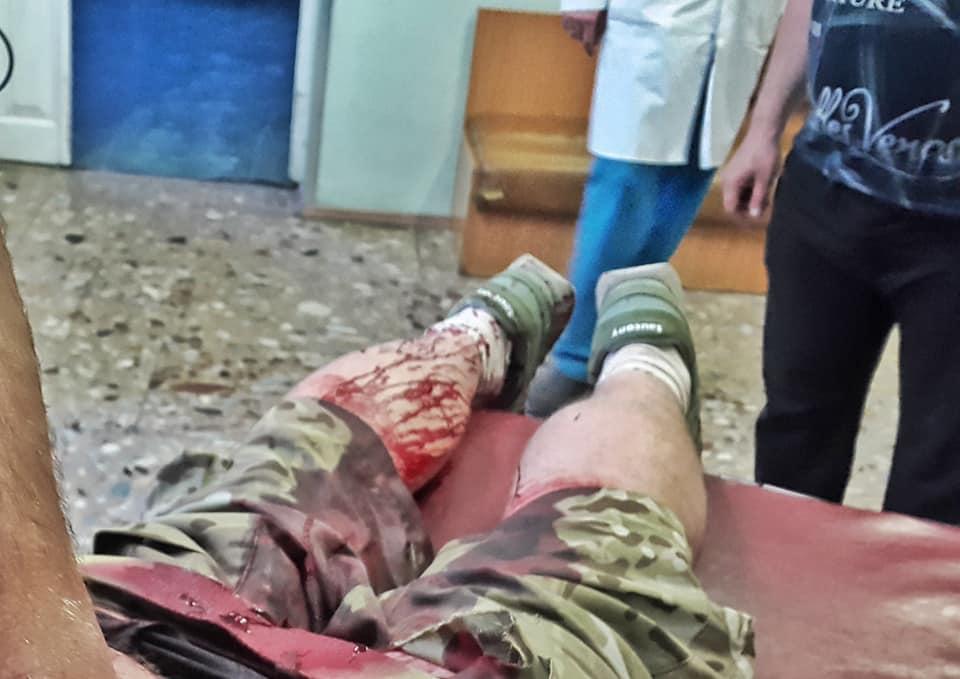 1525334100 9593 - На захисника Донецького аеропорту скоїли напад у центрі Києва - Заборона