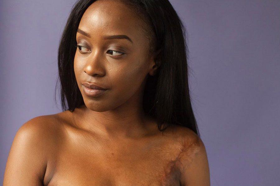 sophiemayanne 2 - «Мої шрами – карта мого виживання»: Відвертий фотопроект - Заборона