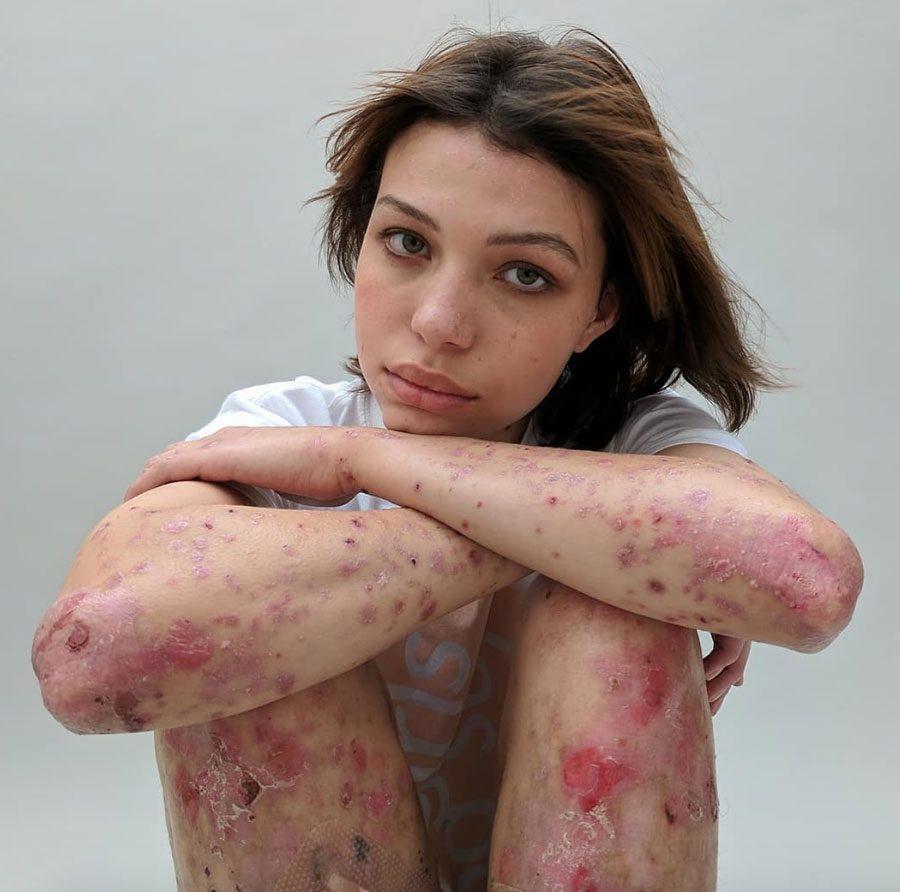 sophiemayanne 5 - «Мої шрами – карта мого виживання»: Відвертий фотопроект - Заборона