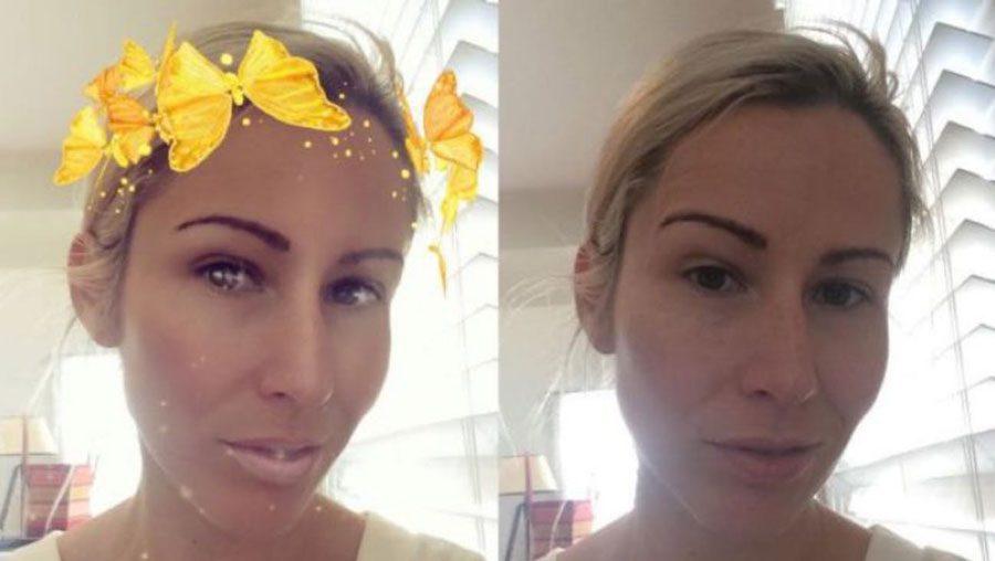 facial symmetry changed by the butterfly filter - Підлітки готові лягти під ніж, щоб виглядати як на фільтрах Snapchat - Заборона
