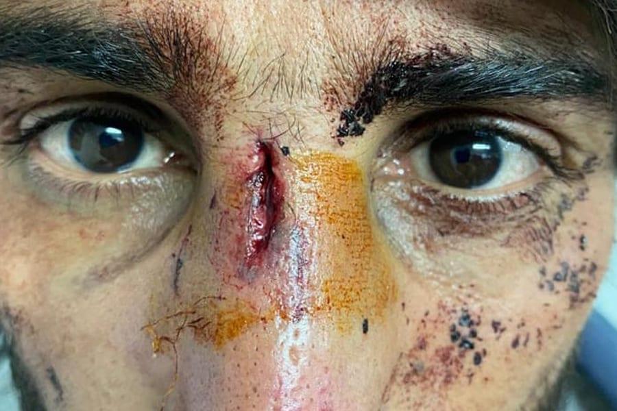 3 20 - <b>Хорватська поліція регулярно била та ґвалтувала біженців.</b> Влада все заперечує - Заборона