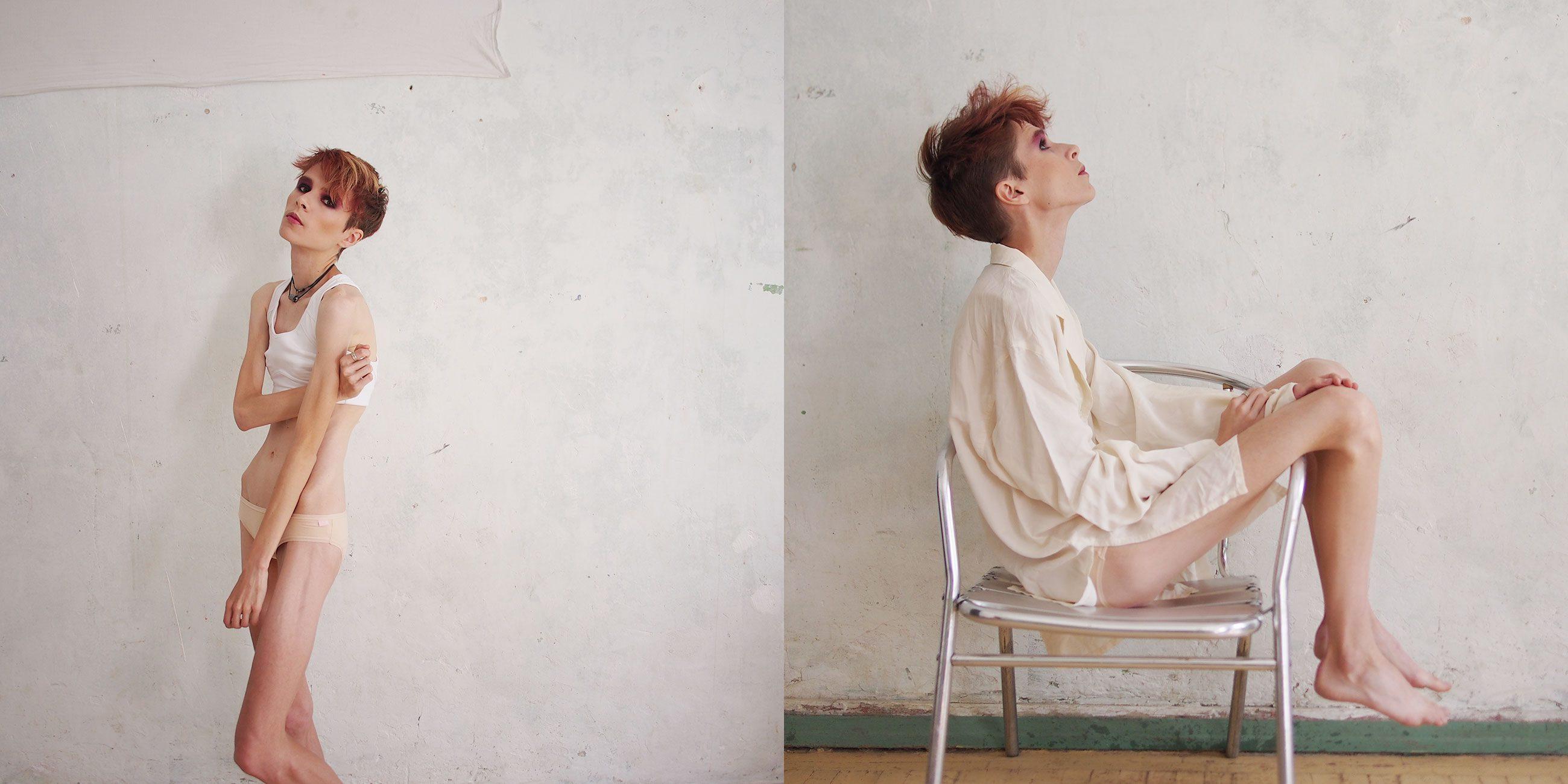 alisa volkova 01 - <b>«Ім'я в мене було одне — корова або свиня».</b> Як живуть люди з розладами харчової поведінки й чому це дуже небезпечне захворювання - Заборона